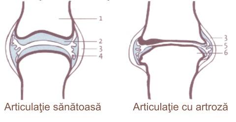Cu artroza, articulațiile doare numai la mers. Durerile de genunchi: simptome, cauze si tratament